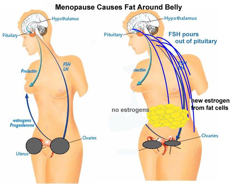 Post-Weight gain menopause